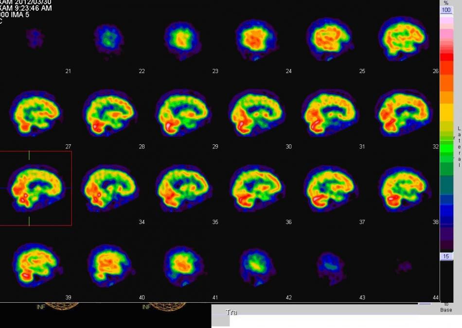 脳血流の分布をみる3軸断面像
