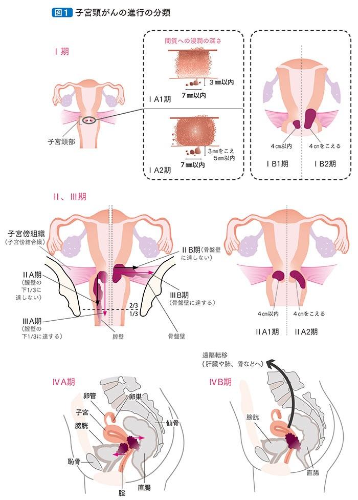 性行為 子宮 摘出