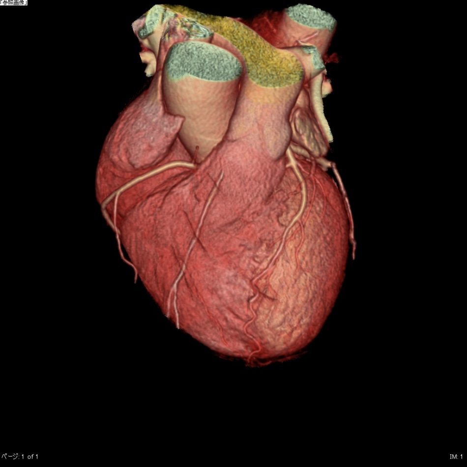 心臓・冠動脈3D像